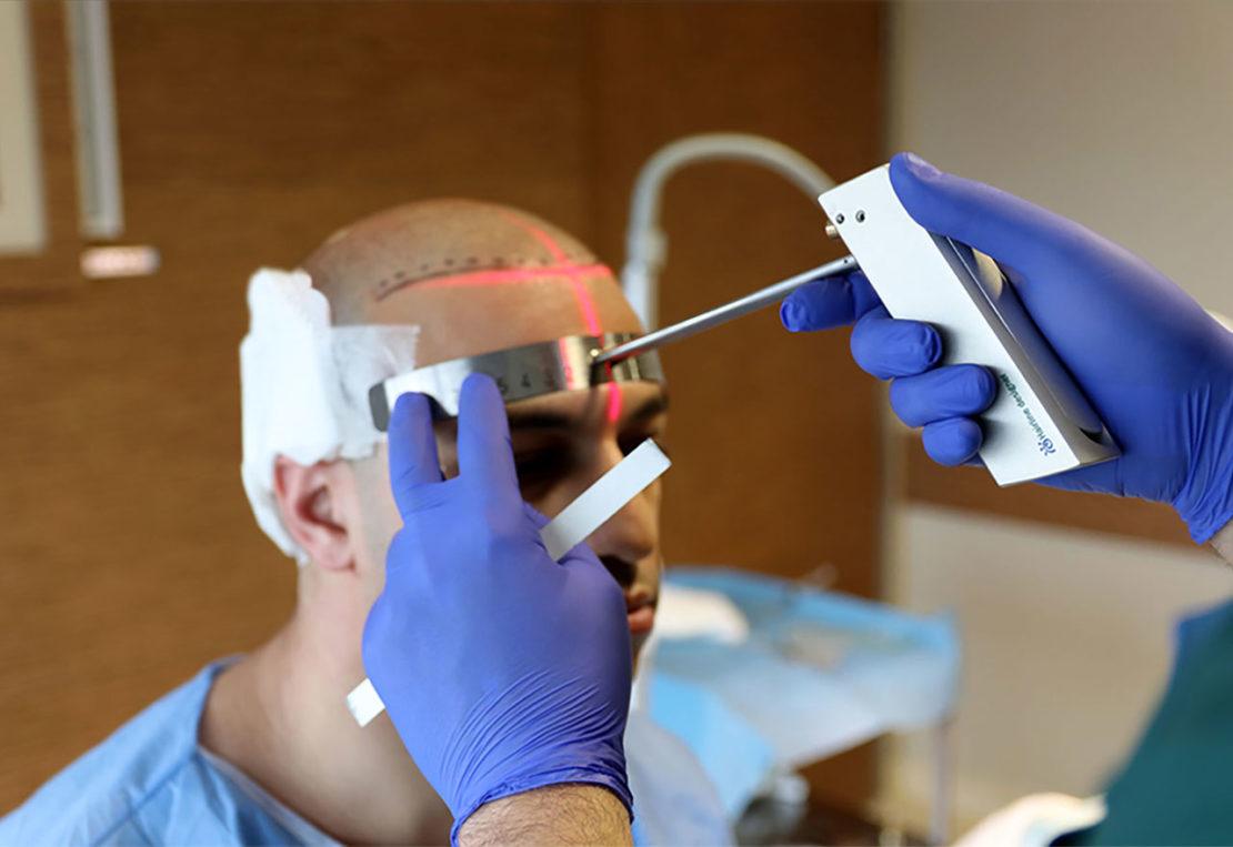 Revolutionäre Haartransplantation Methoden