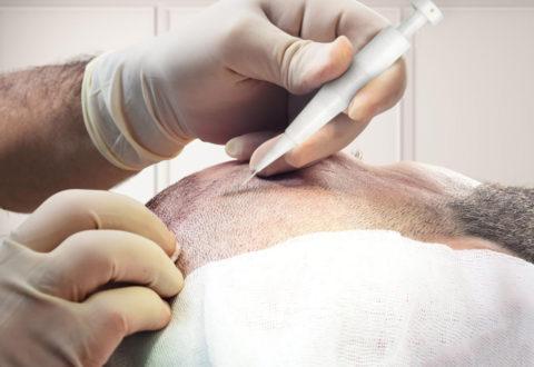 Haartransplantation DHI Methoden