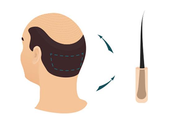 Haartransplantation FUE Methode