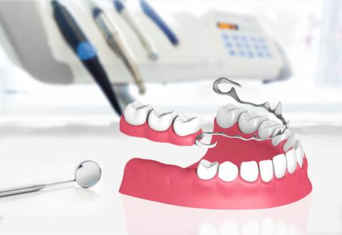 Zahnersatz Klammerprothese