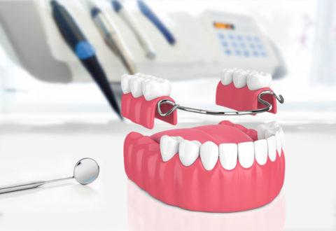 Zahnersatz Teilprothese