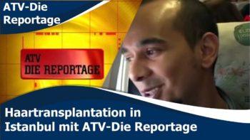 Haartransplantation in Istanbul mit ATV-Die Reportage